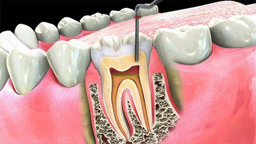 Điều trị tủy răng lần đầu