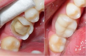 Kết quả khách hàng trám răng thẩm mỹ 1