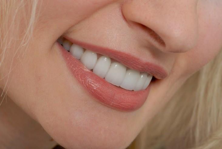 Bọc răng sứ kim loại nào tốt nhất