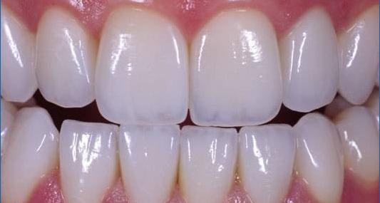 Image result for Tìm hiểu về răng sứ Emax